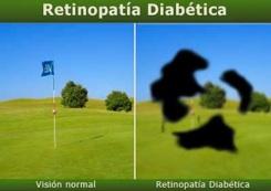 retinopatia diabetica...come si vede